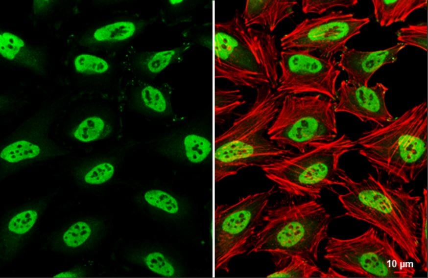 Immunocytochemistry/ Immunofluorescence - Anti-SMARCC1/BAF155 antibody (ab126180)