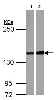 Western blot - Anti-PPP2R3A antibody (ab126195)