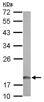 Western blot - Anti-NDUFAB1 antibody (ab126198)