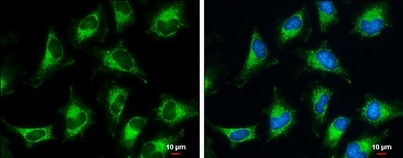 Immunocytochemistry/ Immunofluorescence - Anti-PDHB antibody (ab126203)