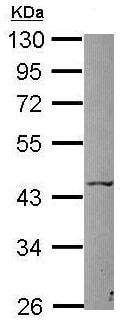 Western blot - Anti-P2X5 antibody (ab126206)