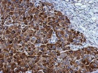 Immunohistochemistry (Formalin/PFA-fixed paraffin-embedded sections) - Anti-NOL3 antibody (ab126238)