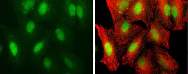 Immunocytochemistry/ Immunofluorescence - Anti-UHRF1 antibody (ab126243)