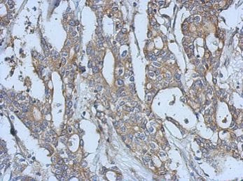 Immunohistochemistry (Formalin/PFA-fixed paraffin-embedded sections) - Anti-Eph receptor A3 antibody (ab126261)