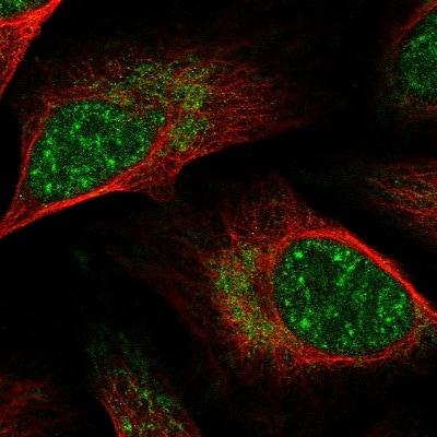 Immunocytochemistry/ Immunofluorescence - Anti-GPATCH8 antibody (ab126300)