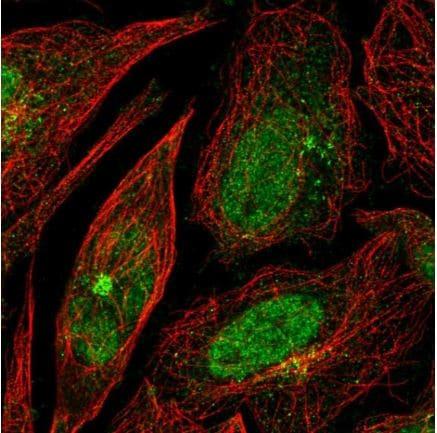 Immunocytochemistry/ Immunofluorescence - Anti-RPP25 antibody (ab126338)