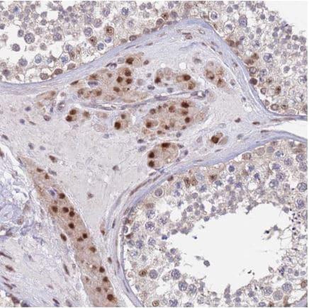 Immunohistochemistry (Formalin/PFA-fixed paraffin-embedded sections) - Anti-RPP25 antibody (ab126338)