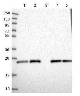 Western blot - Anti-PAXX antibody (ab126353)