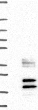 Western blot - Anti-SCGBL antibody (ab126370)