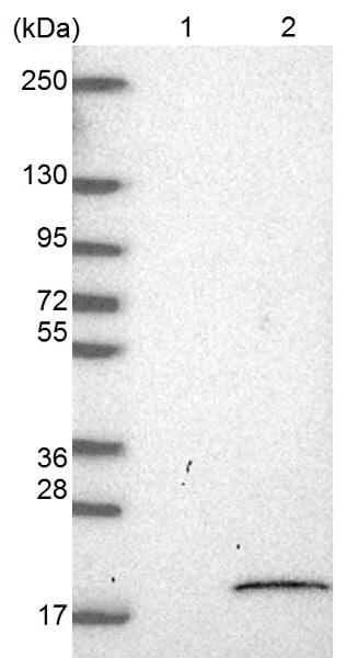 Western blot - Anti-LYRM5 antibody (ab126379)