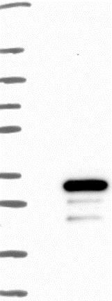 Western blot - Anti-FERDL3 antibody (ab126381)