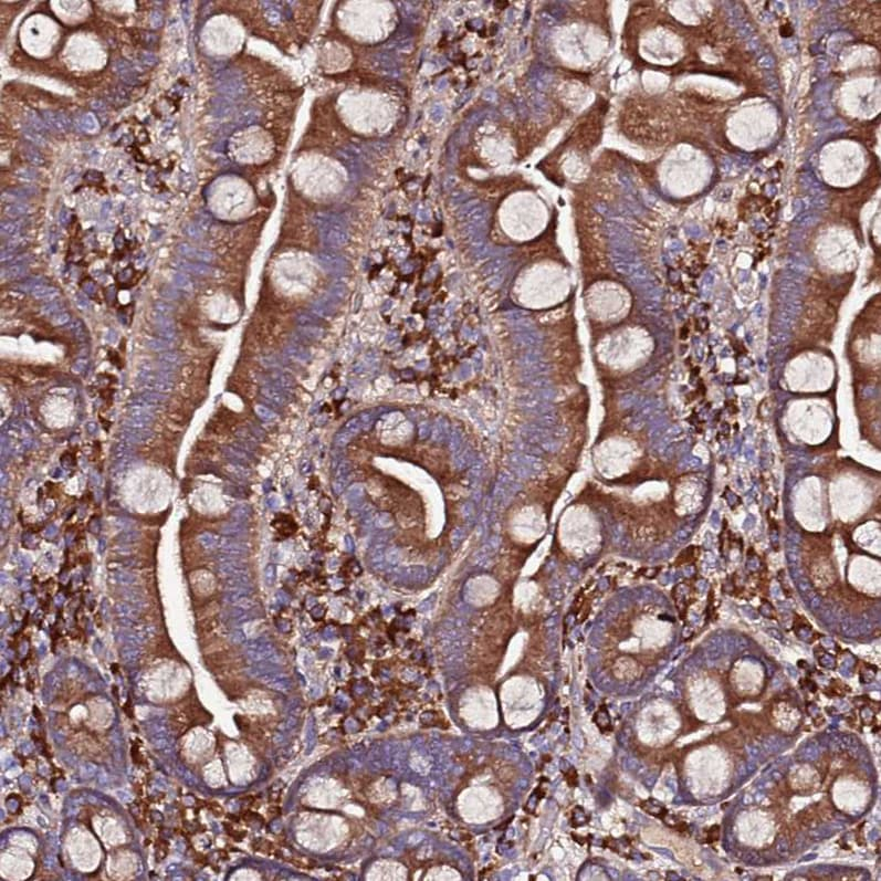 Immunohistochemistry (Formalin/PFA-fixed paraffin-embedded sections) - Anti-VMO1 antibody (ab126510)