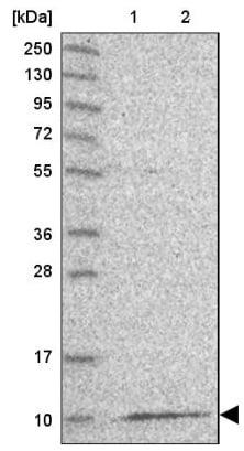 Western blot - Anti-BRIP1 antibody (ab126517)