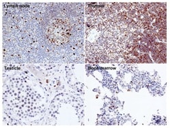 Immunohistochemistry (Formalin/PFA-fixed paraffin-embedded sections) - Anti-EED antibody [163C] (ab126542)