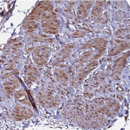 Immunohistochemistry (Formalin/PFA-fixed paraffin-embedded sections) - Anti-MOCS1 antibody (ab126560)