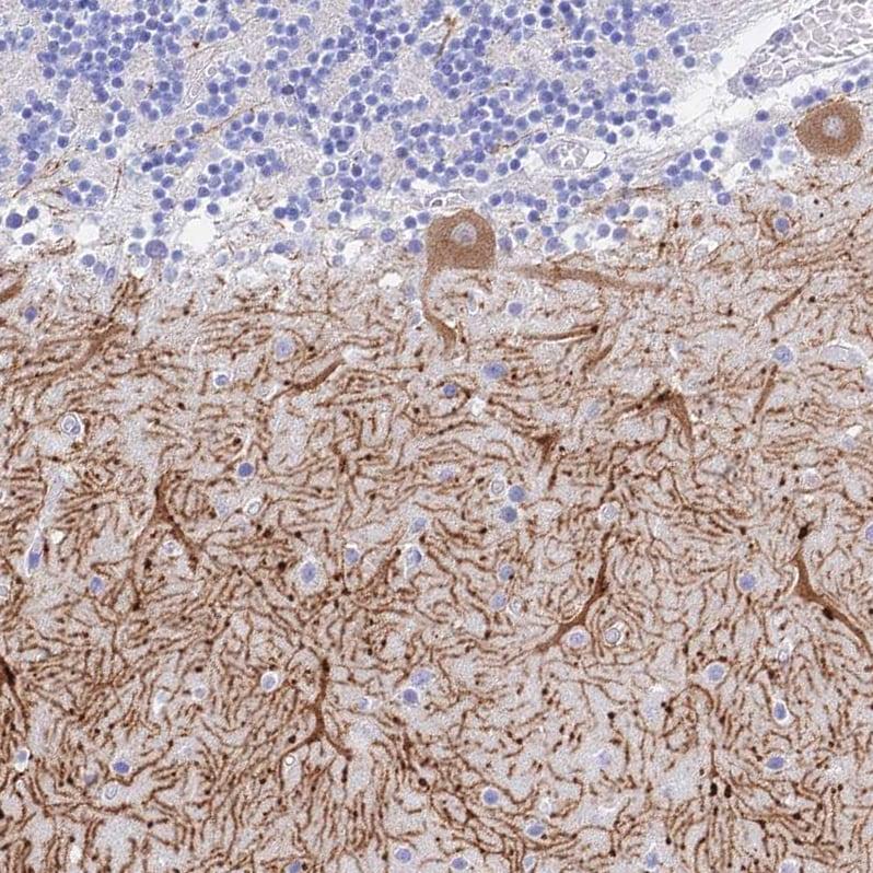 Immunohistochemistry (Formalin/PFA-fixed paraffin-embedded sections) - Anti-GNG13 antibody (ab126562)