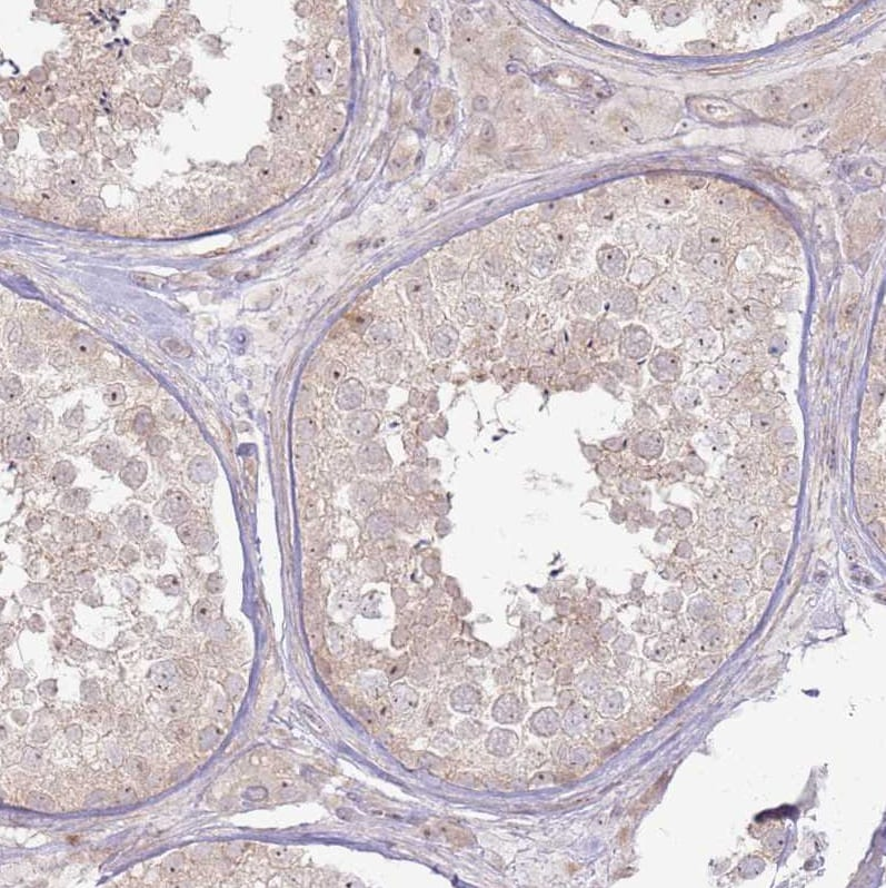 Immunohistochemistry (Formalin/PFA-fixed paraffin-embedded sections) - Anti-CNPY1 antibody (ab126565)