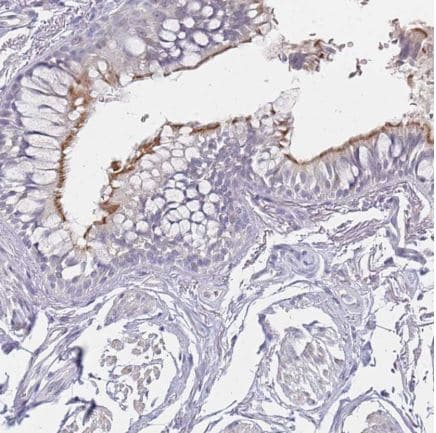 Immunohistochemistry (Formalin/PFA-fixed paraffin-embedded sections) - Anti-DNAH11 antibody (ab126571)
