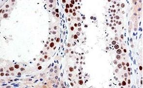 Immunohistochemistry (Formalin/PFA-fixed paraffin-embedded sections) - Anti-SUZ12 antibody [SUZ220A] (ab126577)