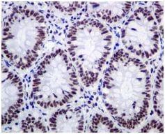 Immunohistochemistry (Formalin/PFA-fixed paraffin-embedded sections) - Anti-SPT5 antibody [EPR5145(2)] (ab126592)