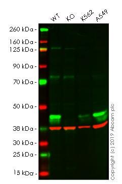 Western blot - Anti-ALKBH1 antibody [EPR6176] (ab126596)