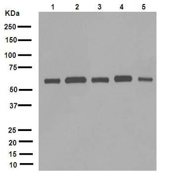 Western blot - Anti-FTO antibody [EPR6894] (ab126605)