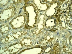 Immunohistochemistry (Formalin/PFA-fixed paraffin-embedded sections) - Anti-LPP antibody [EPR6478] (ab126608)