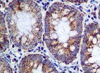 Immunohistochemistry (Formalin/PFA-fixed paraffin-embedded sections) - Anti-ME2 antibody [EPR7218] (ab126616)