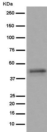 Western blot - Anti-Sex Hormone Binding Globulin/SHBG antibody [EPR6628] (ab126617)