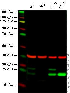 Western blot - Anti-COMT antibody [EPR6490] (ab126618)