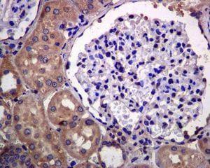 Immunohistochemistry (Formalin/PFA-fixed paraffin-embedded sections) - Anti-EDG3/S1P3 antibody [EPR4541(2)] (ab126622)