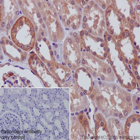 Immunohistochemistry (Formalin/PFA-fixed paraffin-embedded sections) - Anti-N WASP antibody [EPR6959] (ab126626)