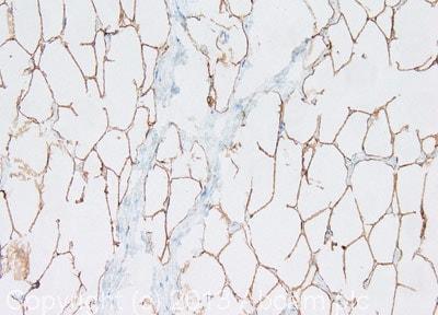 Immunohistochemistry (Formalin/PFA-fixed paraffin-embedded sections) - Anti-Perilipin-1 antibody (ab126639)