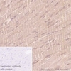Immunohistochemistry (Formalin/PFA-fixed paraffin-embedded sections) - Anti-GCLM antibody [EPR6667] (ab126704)
