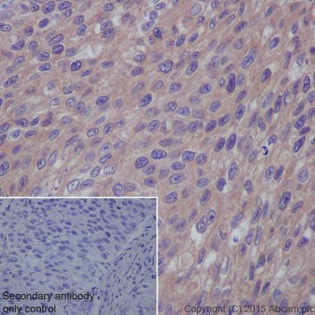 Immunohistochemistry (Formalin/PFA-fixed paraffin-embedded sections) - Anti-RAB7 antibody [EPR7588(B)] - Late Endosome Marker (ab126712)