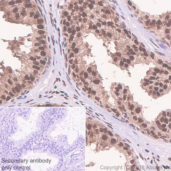 Immunohistochemistry (Formalin/PFA-fixed paraffin-embedded sections) - Anti-FKBP51 antibody [EPR6617] (ab126715)