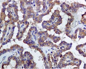 Immunohistochemistry (Formalin/PFA-fixed paraffin-embedded sections) - Anti-LMAN1 antibody [EPR6980] (ab126720)