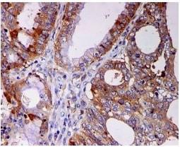 Immunohistochemistry (Formalin/PFA-fixed paraffin-embedded sections) - Anti-STIP1/STI1 antibody [EPR6605] (ab126724)