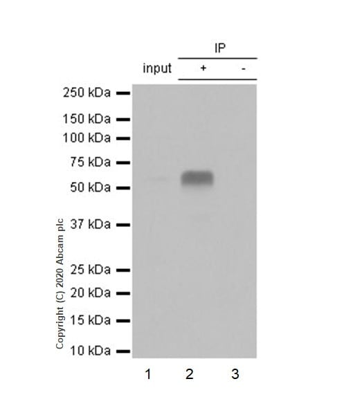 Immunoprecipitation - Anti-DDX5 antibody [EPR7239] (ab126730)