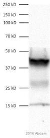 Western blot - Anti-SNF5/SMARCB1 antibody [EPR6966] (ab126734)