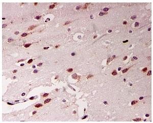 Immunohistochemistry (Formalin/PFA-fixed paraffin-embedded sections) - Anti-ADAR1 antibody [EPR7033] (ab126745)