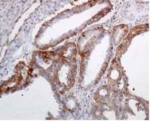 Immunohistochemistry (Formalin/PFA-fixed paraffin-embedded sections) - Anti-STIP1/STI1 antibody [EPR6606] (ab126753)