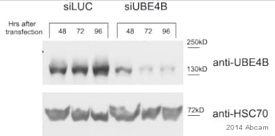 Western blot - Anti-UBE4B antibody [EPR7471] (ab126759)