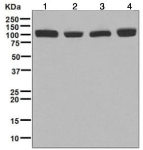 Western blot - Anti-CPSF2/CPSF100 antibody [EPR7599] (ab126760)