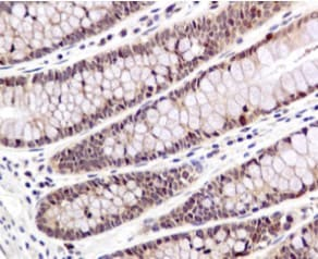 Immunohistochemistry (Formalin/PFA-fixed paraffin-embedded sections) - Anti-Smad1 antibody [EPR5522] (ab126761)