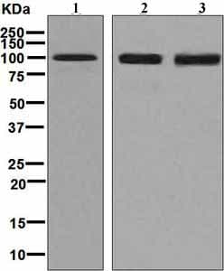 Western blot - Anti-Desmocollin 3 antibody [EPR7486] (ab126768)