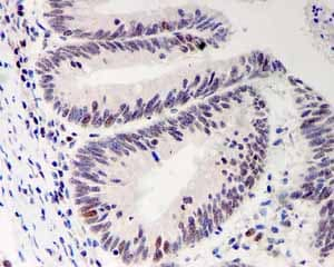 Immunohistochemistry (Formalin/PFA-fixed paraffin-embedded sections) - Anti-Bmi1 antibody [EPR3745(2)] (ab126783)