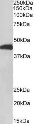 Western blot - Anti-Haptoglobulin beta antibody (ab126842)