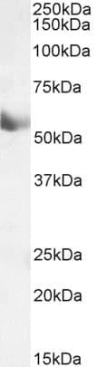 Western blot - Anti-CYP1A1 antibody (ab126887)