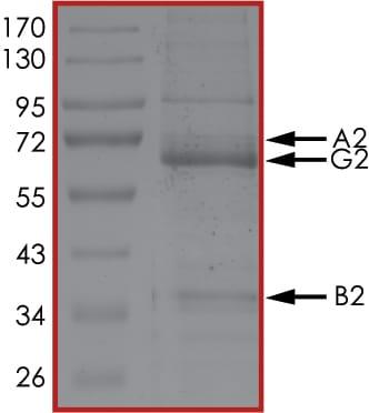 SDS-PAGE - Recombinant human AMPK alpha 2 + AMPK beta 2 + AMPK gamma 2 protein (ab126916)